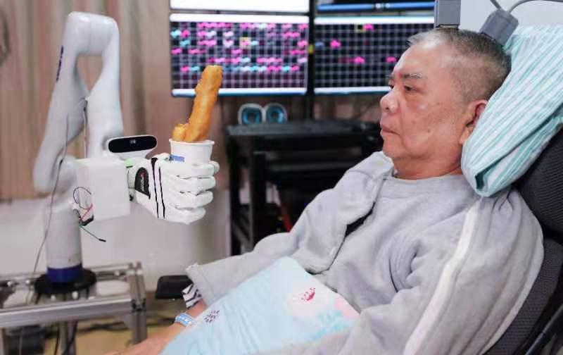浙江大学完成国内首例植入式脑机